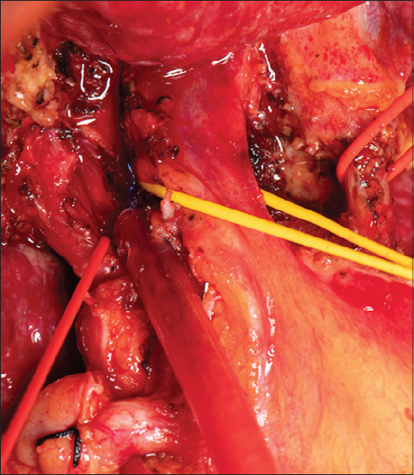 Figure 12: Bile duct looped (yellow), right anterior artery divided other 2 arteries in red loop